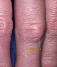 The diffuse swelling of the joint of a finger is called knuckle pad.